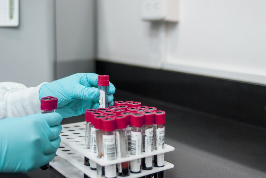 Local Laboratories authorized to test for COVID-19